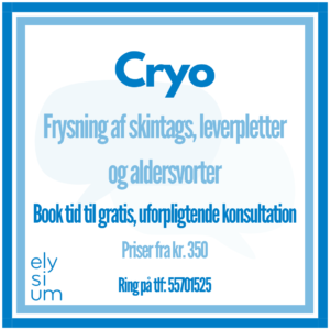 Read more about the article Cryobehandling